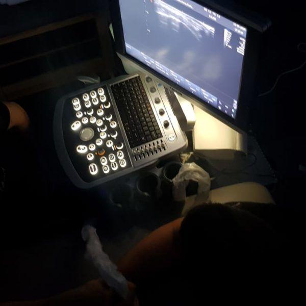 podgląd z monitora ultrasonografii fizjoterapeutów