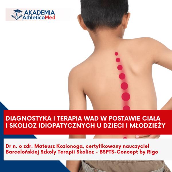 Diagnostyka i terapia wad w postawie ciała i skolioz idiopatycznych u dzieci oraz młodzieży Bydgoszcz
